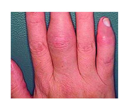 a kezek gyulladt ízületi kezelése)