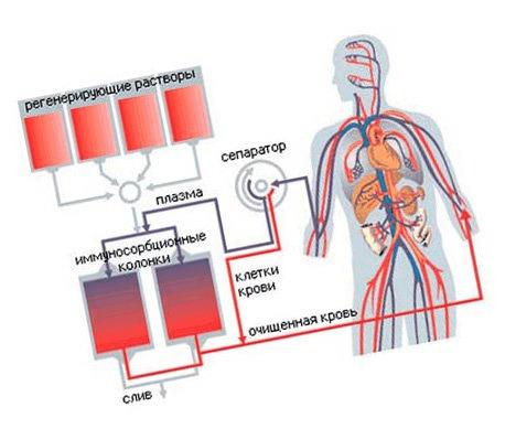 A kollagén betegségek osztályozása és kezelési módszerei - Frissítő