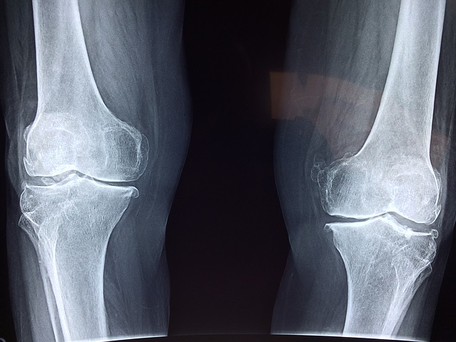 a láb posztraumás artrózisa