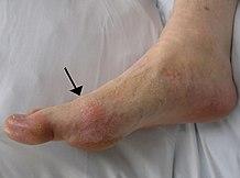 a lábujjak ízületeinek ízületi gyulladása okozza