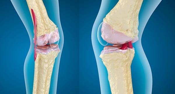 a térd artrózisának kezelése diagnosztizálása a térd oldalsó mellékmegkötésének károsodása