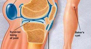 a térd belső meniszkuszának 1 fokos károsodása)