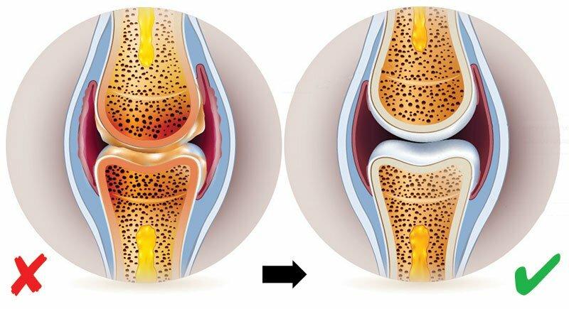 a térd specifikus ízületi gyulladása