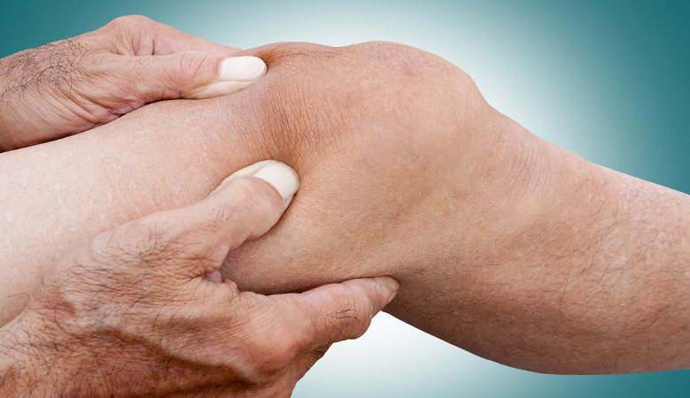a térdízületek reuma kezelése