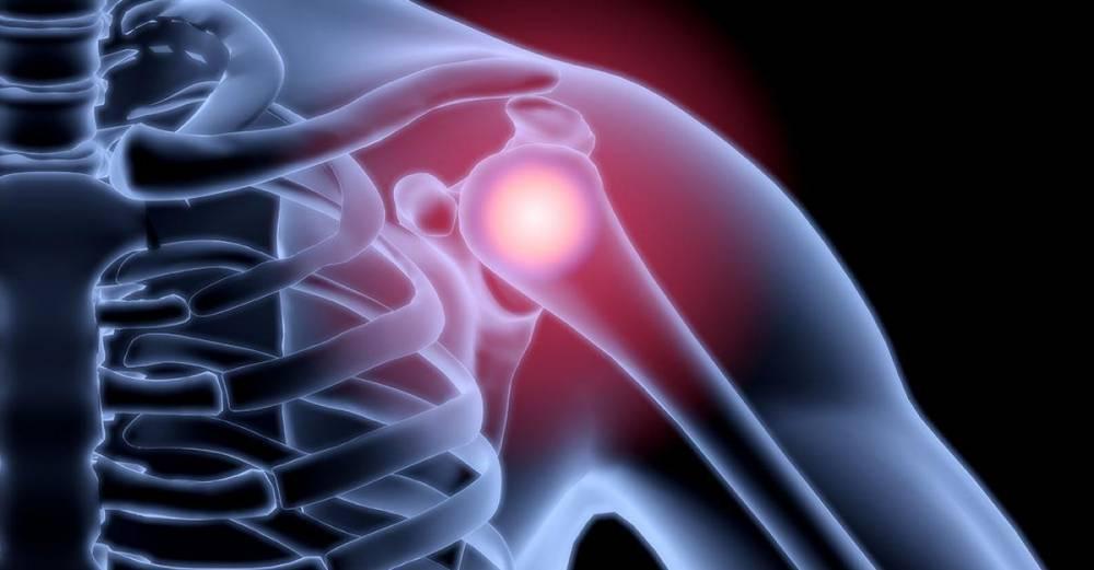 a váll kenőcs kezelése csípőízületek fájnak, mint kezelték