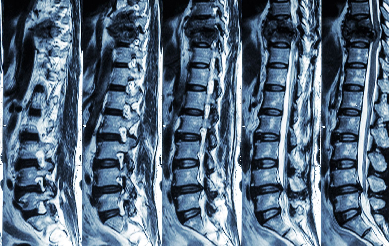 nyaki gerinc artrózis kezelési fórum)