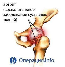 a térd artrózisa 3 4 fok)