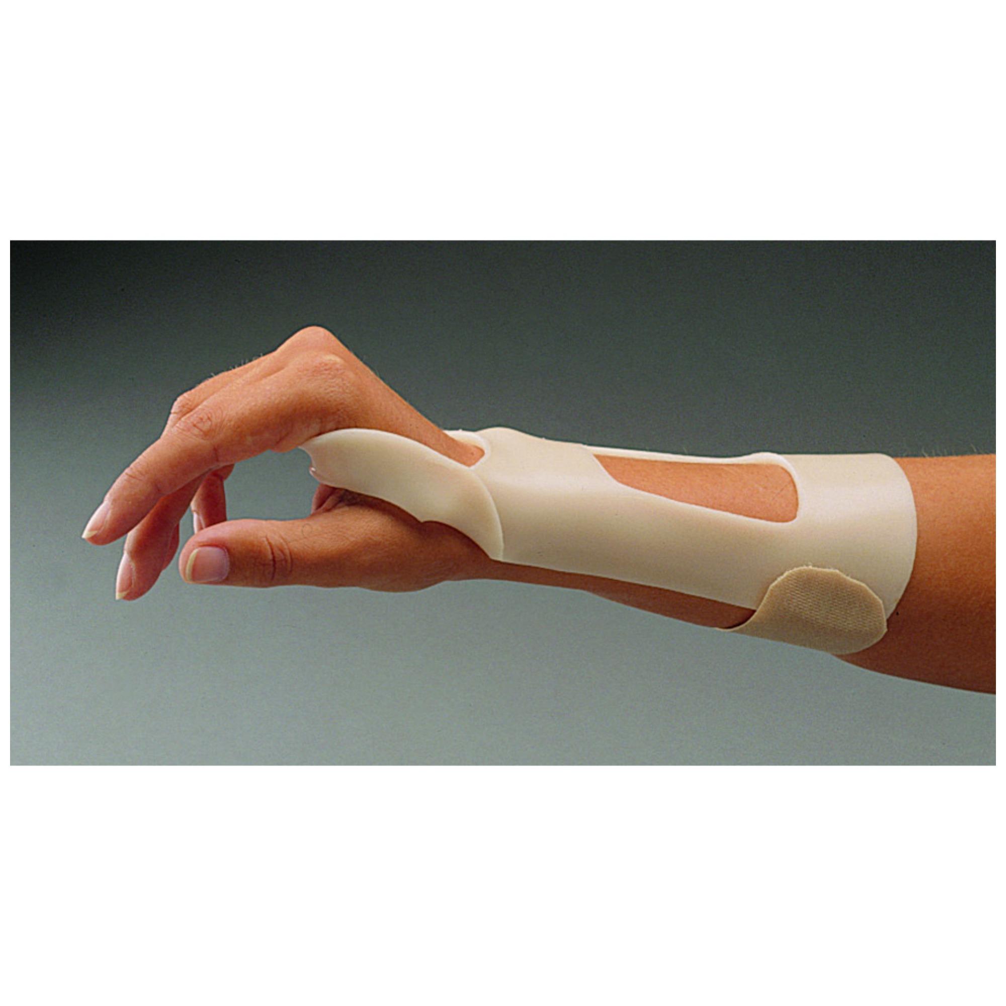 a csukló ízület posztraumás artrózisának kezelése
