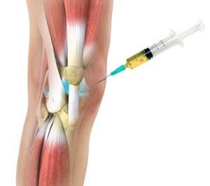 artrózisos kezelés tibeti gyógyszerrel)