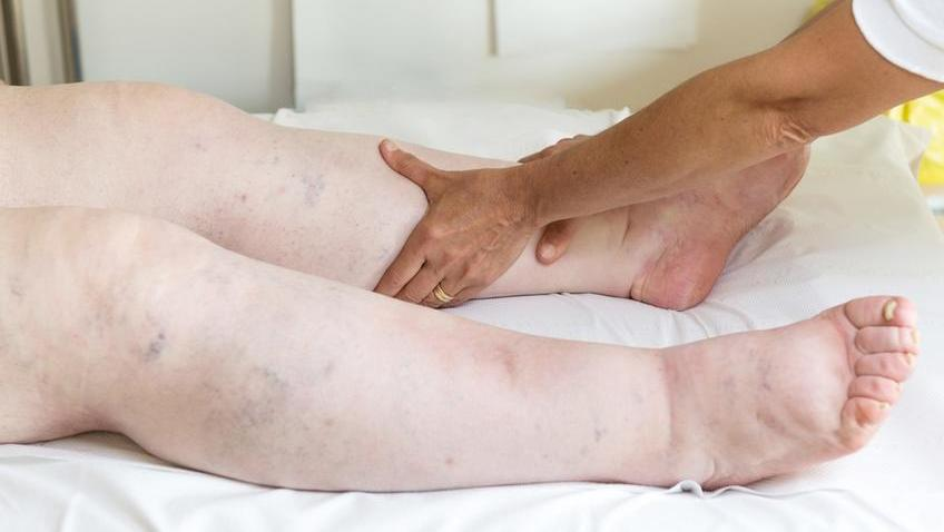 Duzzadt lábak vörös foltok a lábakon Apró, vörös pöttyök a lábszáron?