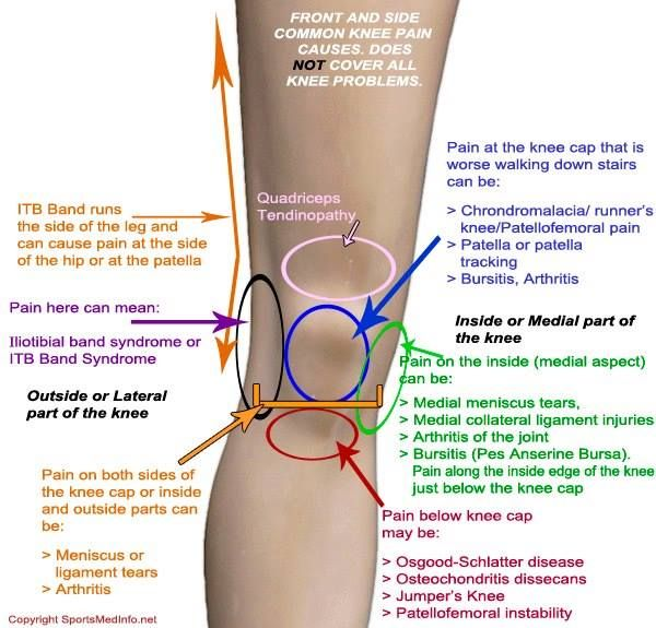 todicamp ízületi fájdalmak kezelésére