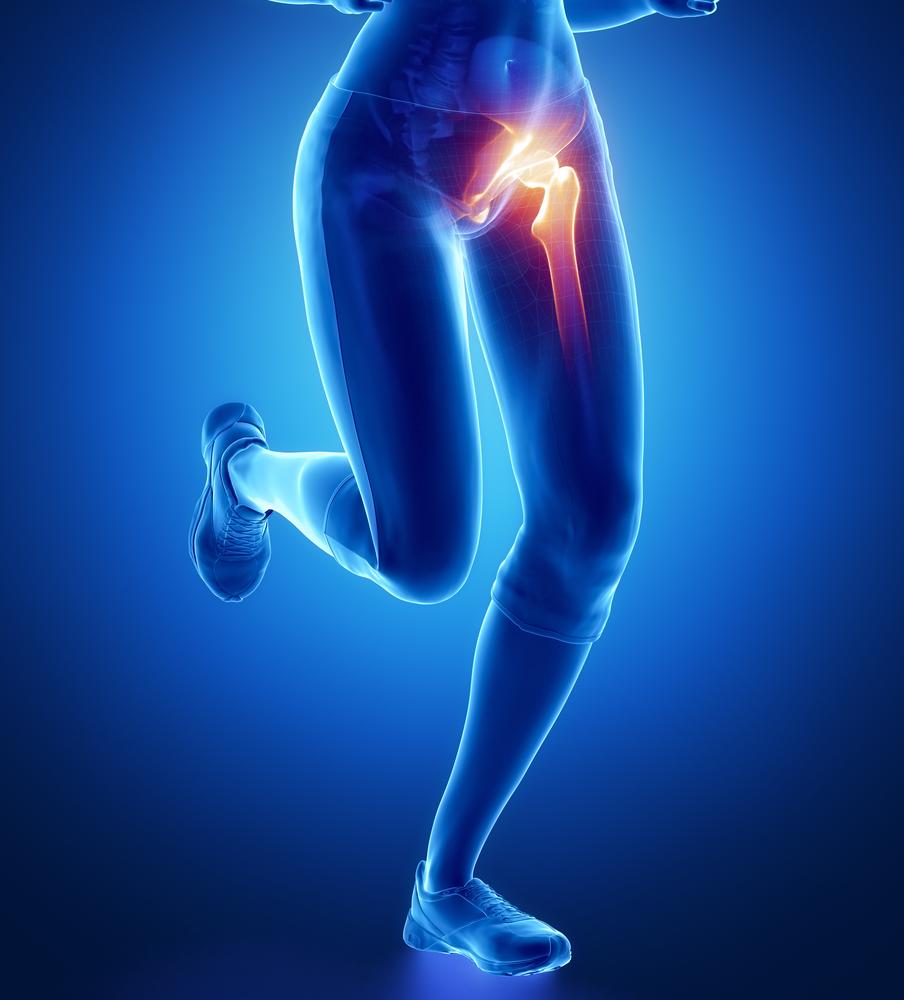a csípőízület izmainak fájdalma