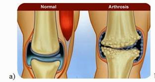 milyen betegség a könyökízület artrózisa