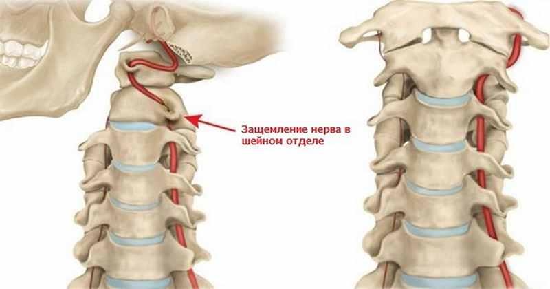 Osteochondrosis 1, 2, 3, 4, 5 fok - minden szakasz és faj leírása - Tünetek