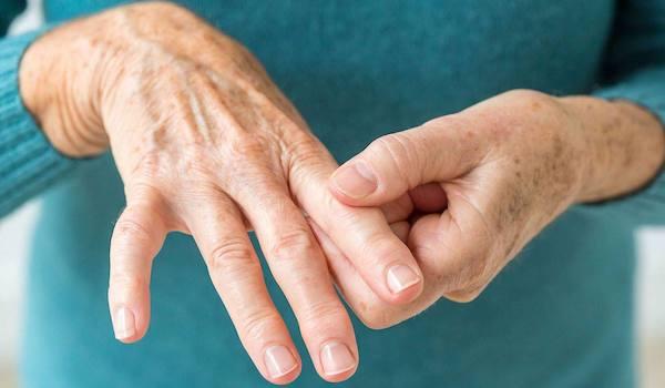 az ujj ízületén lévő dudor nem fáj ízületi fájdalom fórumot okoz