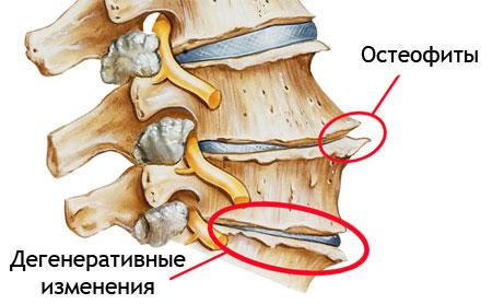 a lumbosacrális gerinckészítmények csontritkulása