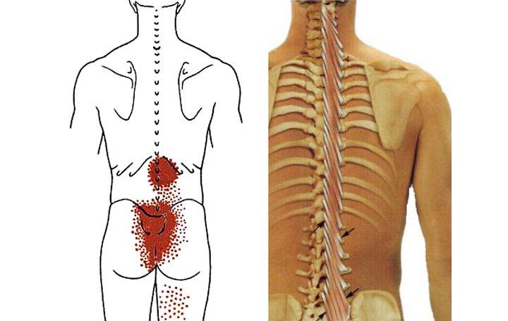 fájdalom az alsó hát és a vállízületben