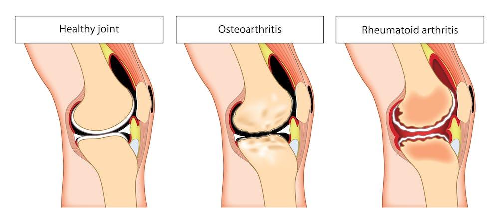 arthritis psoriatica en espanol