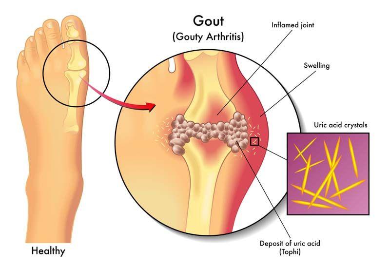 arthrosis kezelés chernihiv)