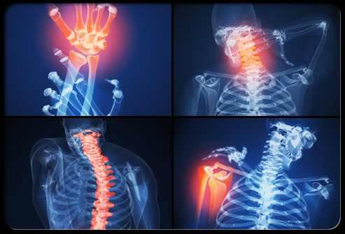 artritisz könyökízületek)