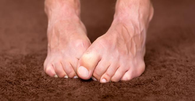 artritisz zsibbadt lábujjak