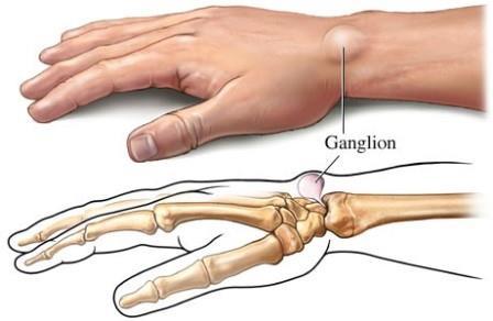 artrózis jelenléte a középső láb ízületeiben