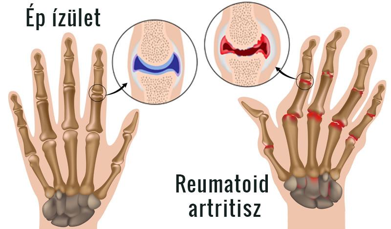 az artritisz által érintett kezek