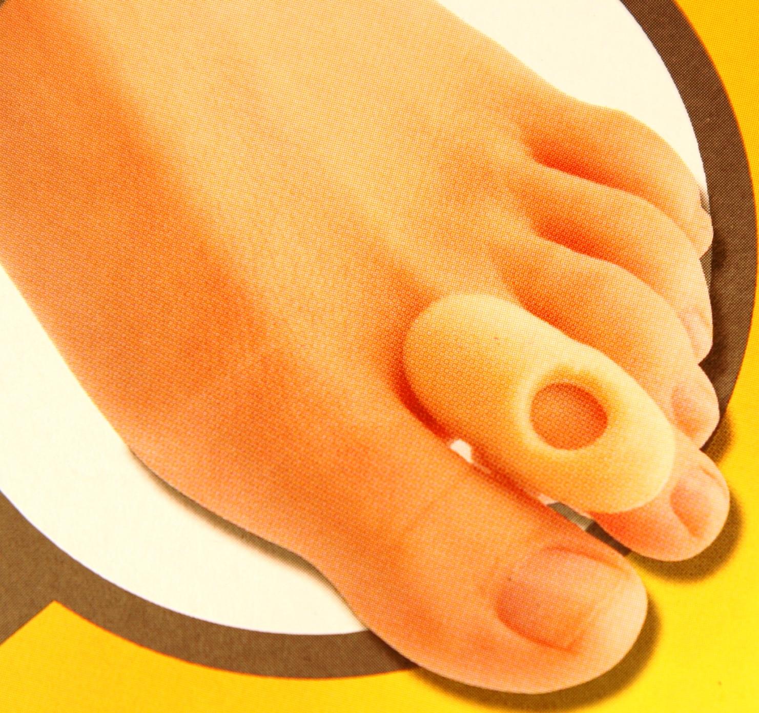 az ujjak ízületeinek deformációja, hogyan kell kezelni