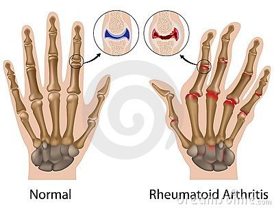 az ujjak ízületi fájdalmától