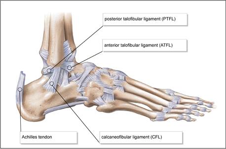 váll ligamentum törés helyreállítása