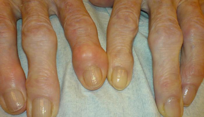 gyógyszer az ujjak artritiszére pentalgin ízületi fájdalom