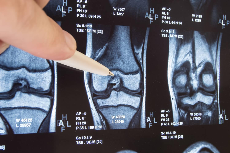izom- és ízületi gél súlyos térdfájdalom, mint a kezelés