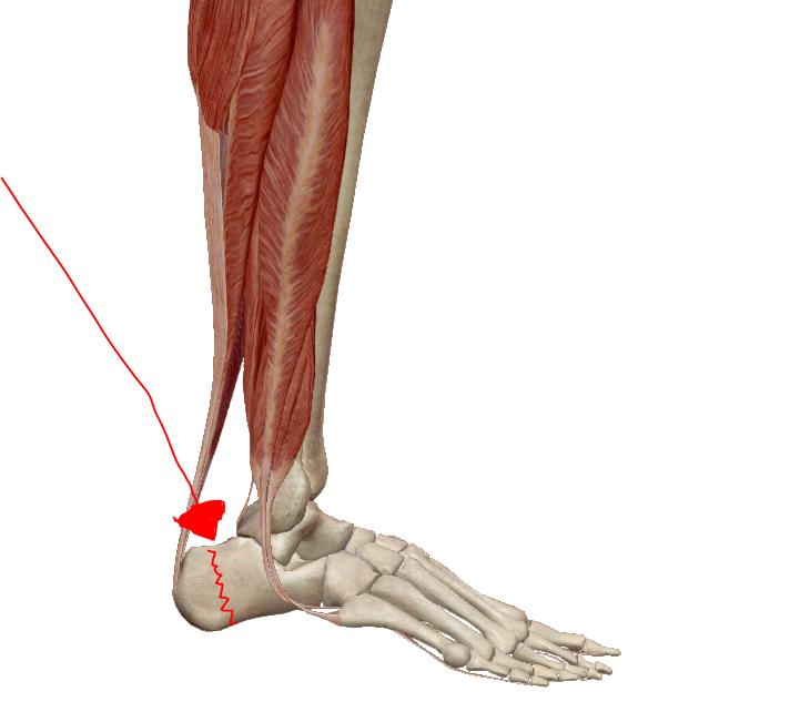 hogyan fáj a bokaízület ízületi gyulladása