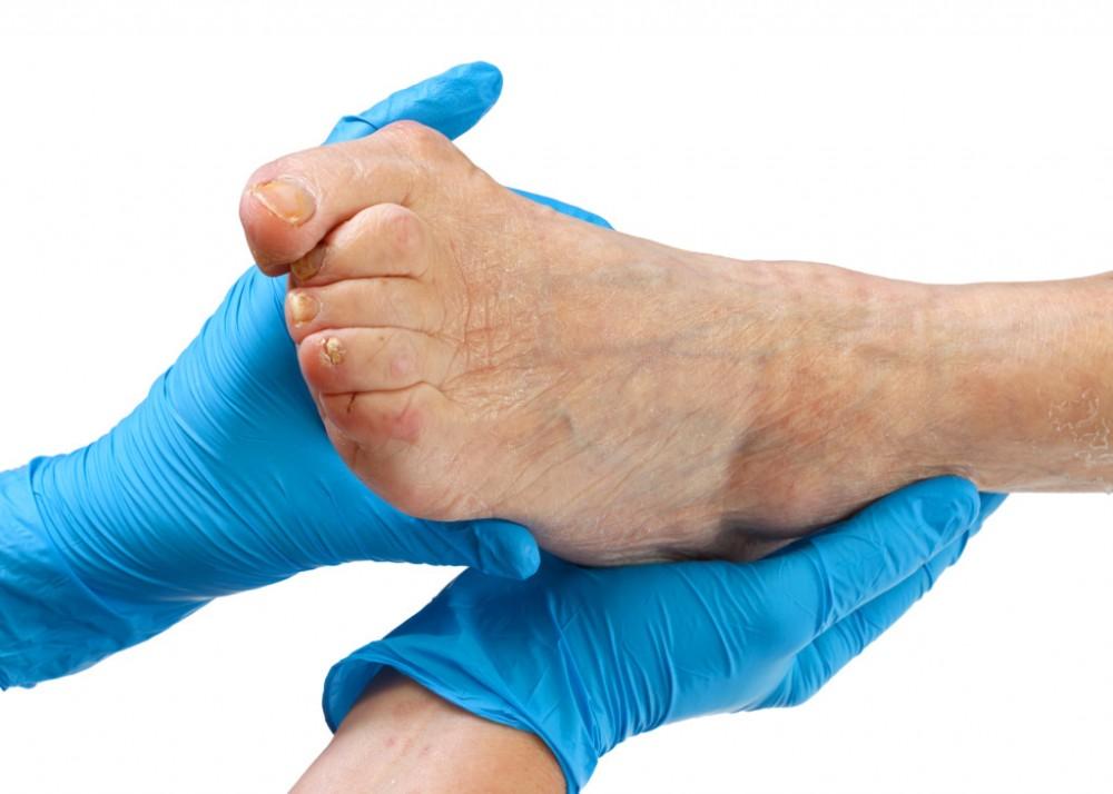 fáj a láb kis ujja ízülete