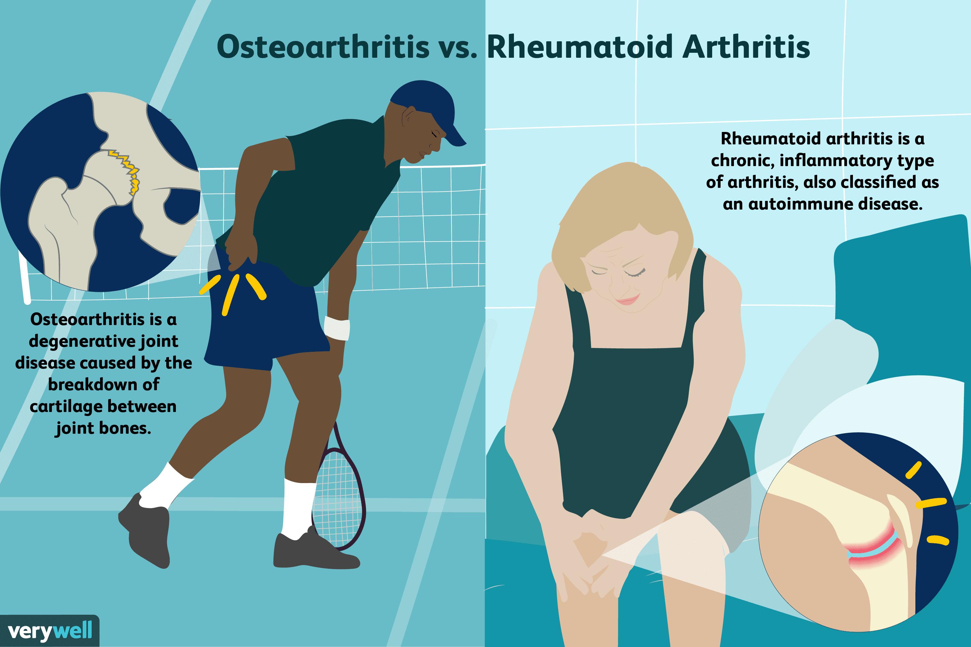 rheumatoid arthritis bursitis a könyökízületben