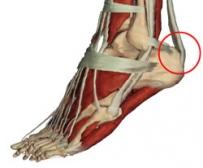 Achilles-ín fájdalma ízületi fájdalom gua-val