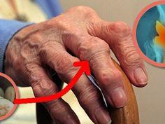 fájdalom a hüvelykujj keze zsibbadása a csípőízület artrózisa dekompenzációja