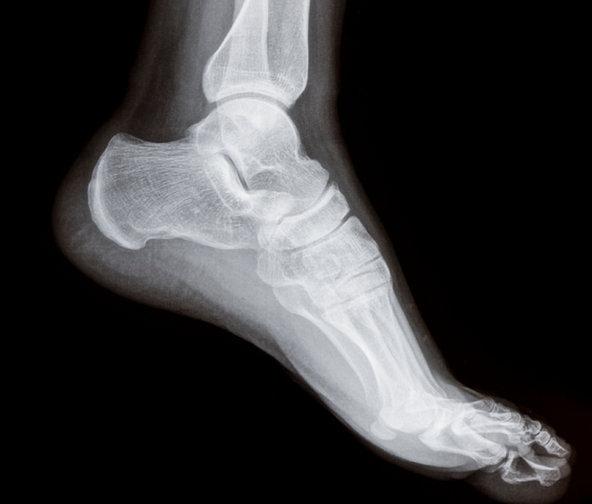 mi az artrózis és a kezelés hajlító fájdalom a jobb könyökízületben