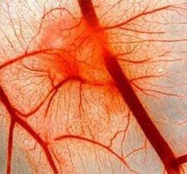 szisztémás betegségek bőrízületek