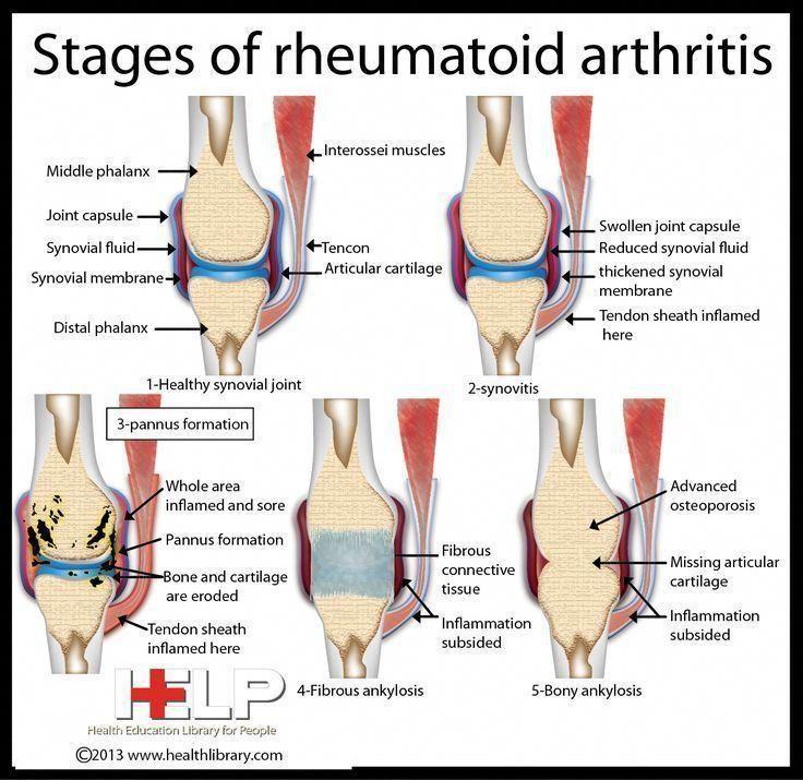 arthrosis osteoporosis ízületi kezelés