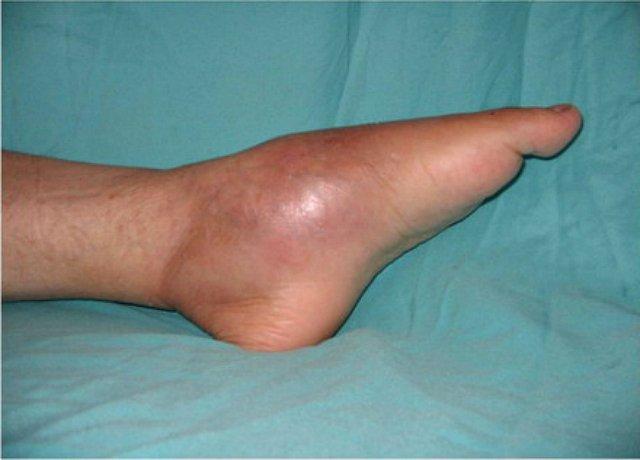 boka duzzanat sérülés nélkül fájdalom a térdízület fejlődése során
