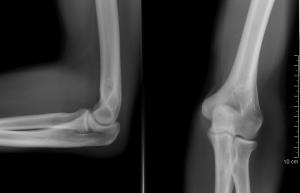 boka ligamentum-repedés kezelése
