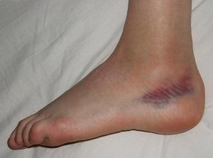 boka sérülések következményei
