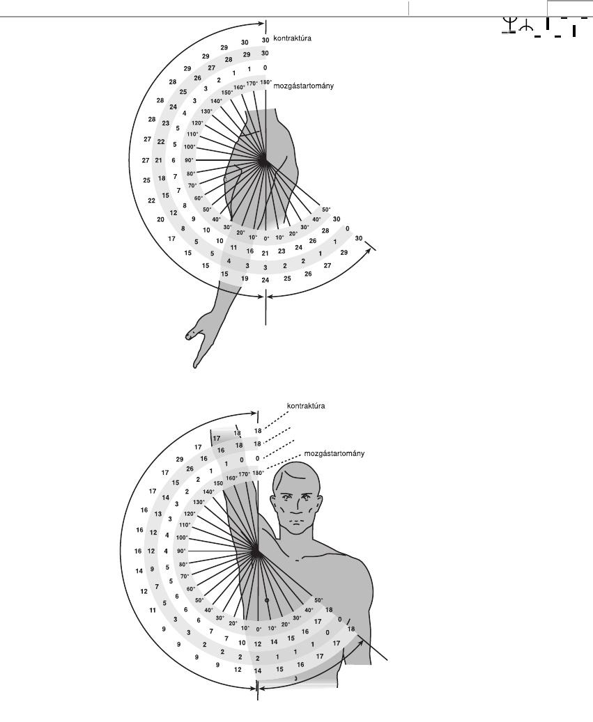 1. fokozatú csuklóízület