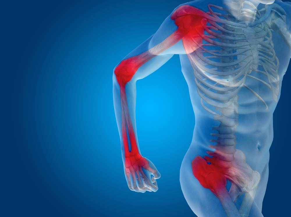 csípőízületi fájdalom szinovitissal az ízületeket gyorsbillentyűvel kezelje