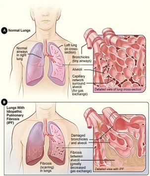 kötőszöveti fibrózis kezelés