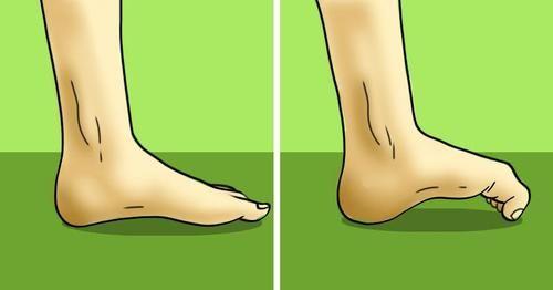 Csípőtorna, egyszerű gyakorlatok csípőfájdalom kezelésére. | cseszlovak.hu