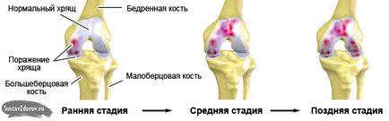 a térd gonartrózisa 1-2 fokos kezelés)