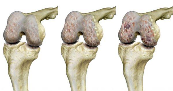 artrózis hagyományos kezelési módszerei)