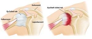 hogyan kezeljük a vállízület akut artrózisát)